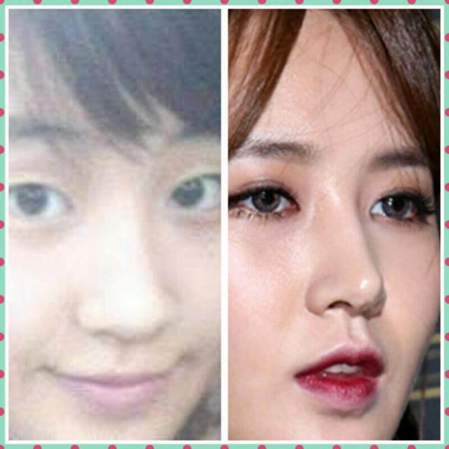 少女時代ユリの整形前後の鼻比較